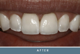 brandon after Brandon's Case Study   Crowns & Corrective Gum Surgery