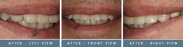 fred after Fred's Case Study   Implants & Crowns