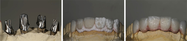 fred technology Fred's Case Study   Implants & Crowns