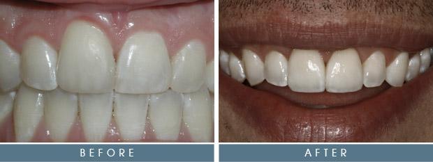 sg brandon Brandon's Case Study   Crowns & Corrective Gum Surgery