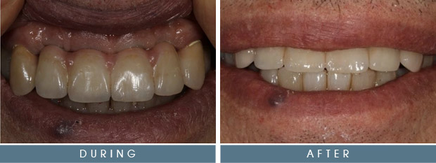 sg fred top Fred's Case Study   Implants & Crowns