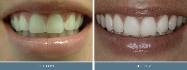 stacy 1 Stacey's Case Study   Porcelain Veneers