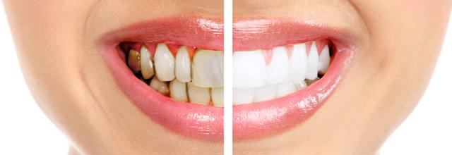 Studies Lead Researchers To Believe That Gum Disease Is