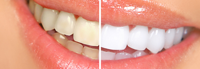 Tooth-Whitening-Tips-The-Natural-Way